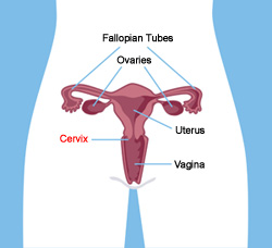 Mcw department of obstetrics gynecology cervical cancer cervical cancer diagram ccuart Choice Image