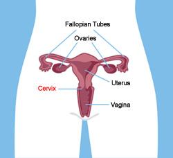 cervical cancer  cervical cancer diagram