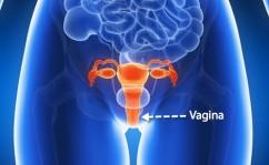 vaginal